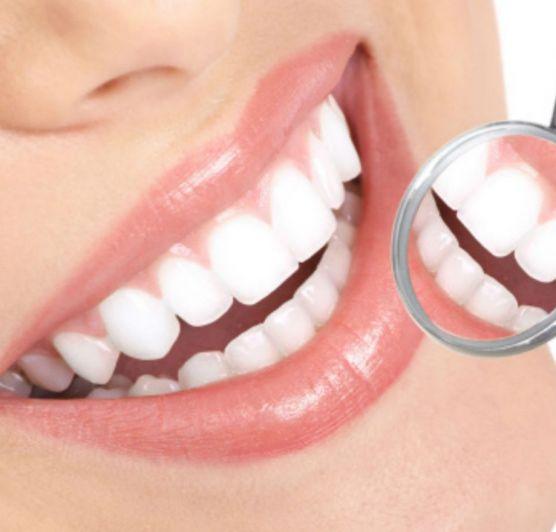 Otthoni fogfehérítés kontra professzionális módszerek