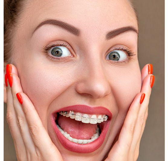 Tévhitek a fogszabályozásban